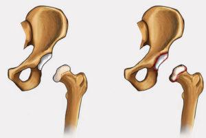 почему может болеть тазобедренный сустав