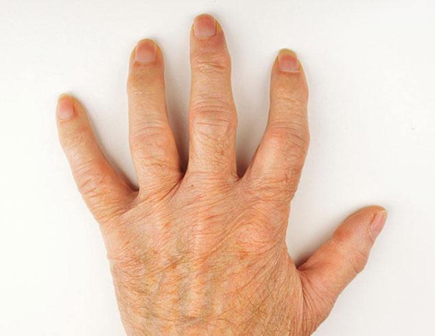 Артроз кистей рук: причины, клинические проявления, особенности лечения