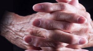 заболевание суставов рук как диагностировать
