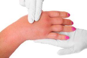 как же лечить руки если болят фото