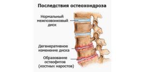 остеофиты при заболевании пояснично-крестцового отдела