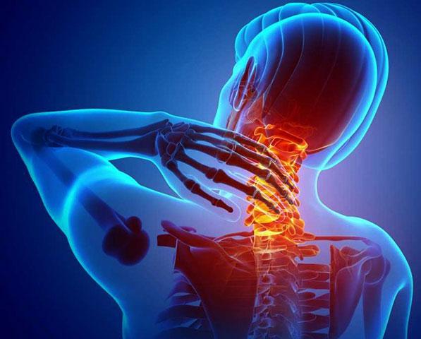 Артроз шейного отдела позвоночника – методы диагностики, причины и способы лечения