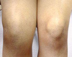 Болит и опухает колено причины и лечение