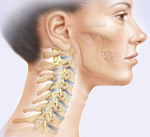 профилактика шейного остеохондроза позвоночника