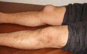 коленка с бурситом как выглядит фото