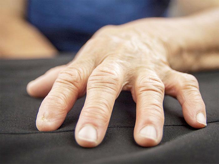 Артроз рук – симптомы, причины, диагностика, лечение недуга