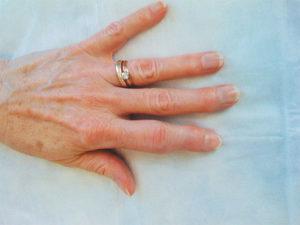 больная рука фотография
