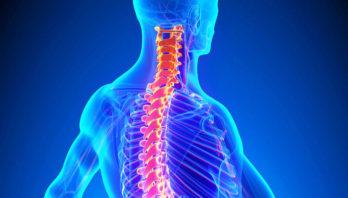 Лечение остеохондроза шейного отдела позвоночника: препараты, массаж, лфк