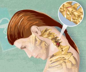 лечение остеохондроза шейного отдела позвоночника