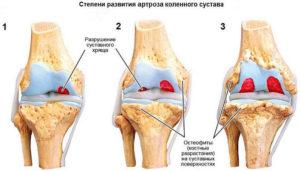 Артроз коленного сустава - передовое лечение