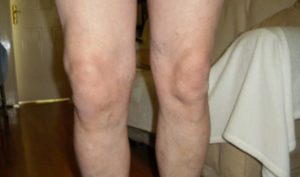 причины артроза колена 2