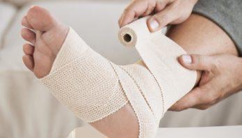 Лечение ушибов: лекарства и народные средства в домашних условиях