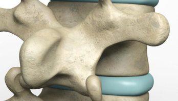 Остеохондроз 2 степени: причины, симптоматика, диагностика, лечение