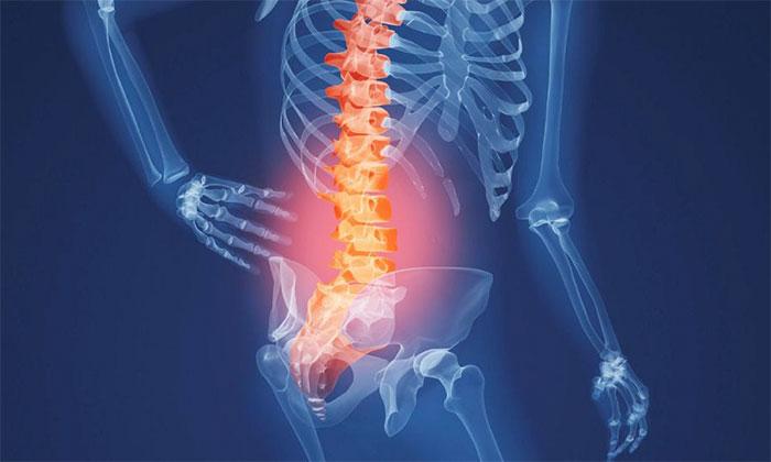 Остеопороз: причины, лечение, диагностика и профилактика