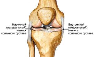 мениск коленки диагностирование разрыва