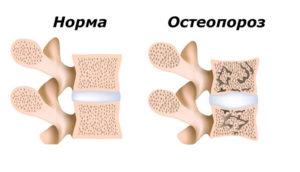 остеопороз может вызывать боли в спине