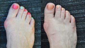 косточка на ногу