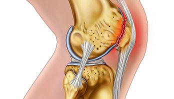 Мениск коленного сустава – симптомы и лечение повреждения