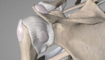 Синовит плечевого сустава – частые причины, симптомы, лечение