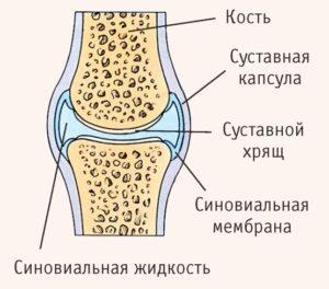 локтевой синовит