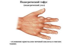 подагра на руках