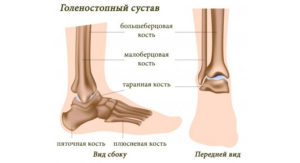 Изображение - Внезапная боль в голеностопном суставе bolivgolenostope-300x163