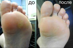до и после натоптышей