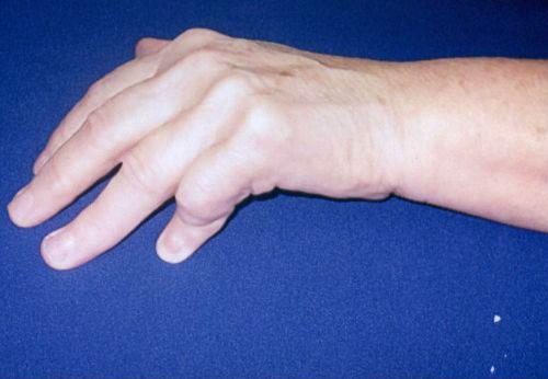 Анкилоз: признаки, причины, диагностика и лечение