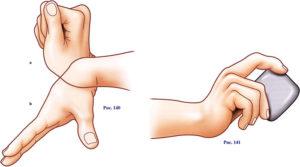Лечение лучезапястного сустава