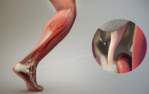 нога с растяжением