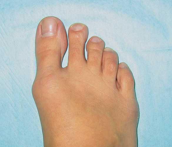 Косточка на большом пальце ноги: причины, диагностика и лечение