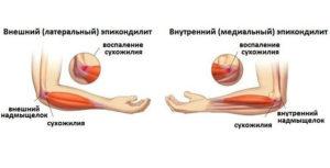 эпикондилит локтевого сустав