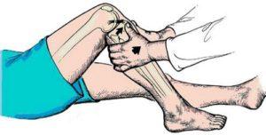 профилактика растяжения связок коленного сустава