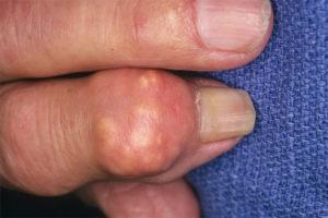 лечение подагры на руках