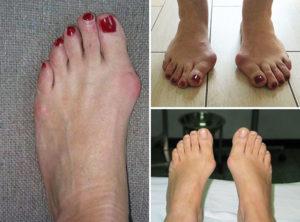 как правильно лечить косточку на ноге