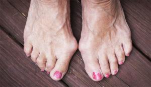 Косточка на большом пальце ноги