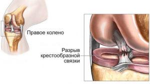 диагностика связок коленного сустава