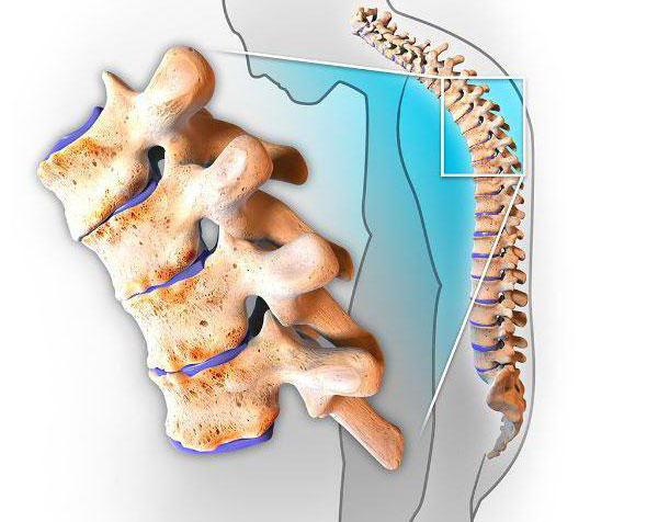 Спондилоартрит: причины, симптомы, диагностика и лечение