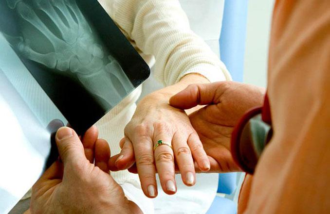 Какой врач лечит артрит? Специалисты, ревматологи и хирурги