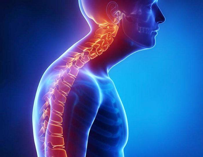 Болезнь Бехтерева: что это такое? Причины, диагностика и лечение
