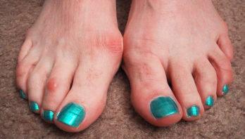 Болит косточка на ноге около большого пальца – причины и лечение