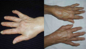 как проявляется артрит лучезапястного сустава