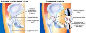 Болезни тазобедренного сустава
