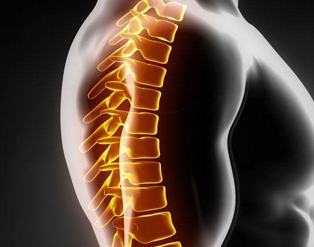 Спондилез грудного отдела: причины, симптомы, диагностика, лечение