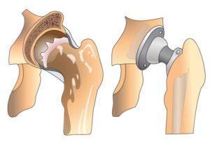 что такое реабилитация после эндопротезирования тазобедренного сустава