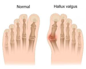 диагностика больной косточке на ноге