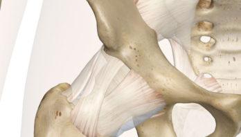Боль в тазобедренном суставе при ходьбе – причины, симптомы, лечение