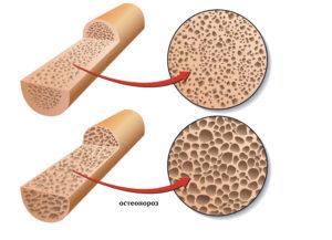женский остеопороз как лечить