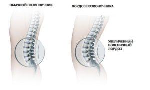 как правильно лечить больную спину и позвоночник