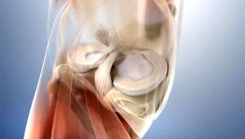 Воспаление мениска – причины, симптомы, диагностика, лечение